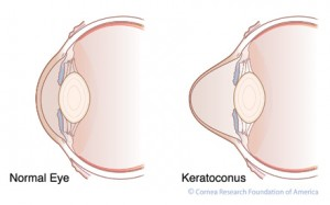Keratoconus diseased eye